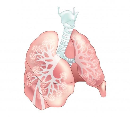 portfolio-palaisdec-poumons-une